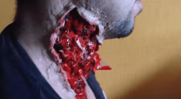 herida
